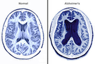 Study finds that sleep apnoea and Alzheimer's are linked