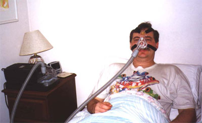 CPap, Anti-snoring devices