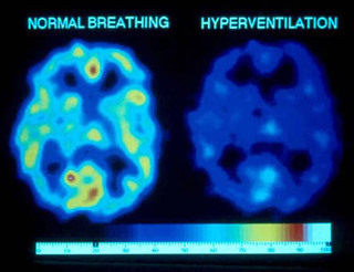 Normal breathing vs hyperventilation brain image
